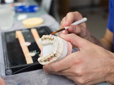 口腔修复工艺-口腔模型制作